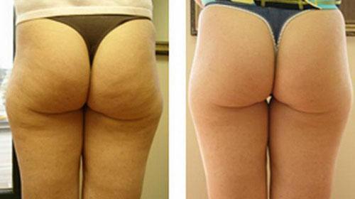 Геморрой с узелками лечение